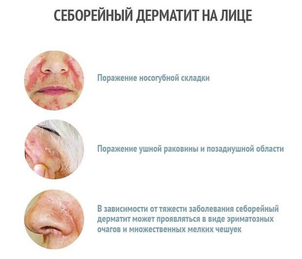 Себорейный дерматит болезнь