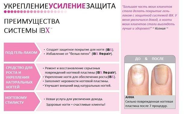 Схема усиления ногтя