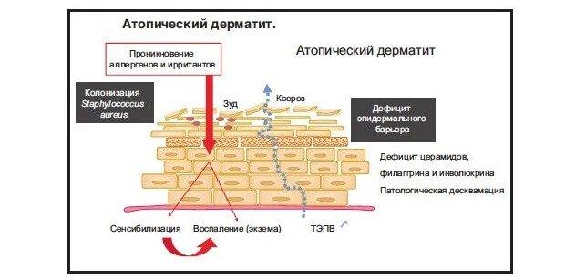 Схема атопического дерматит