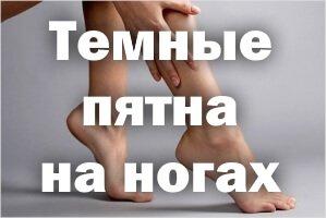 Темные пятна на ногах