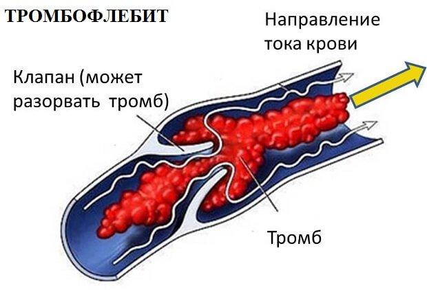 Тромбофлебит вен