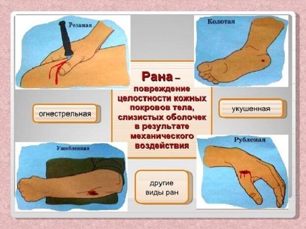 Виды повреждений кожи