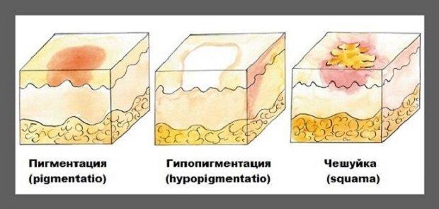 Виды пигментации