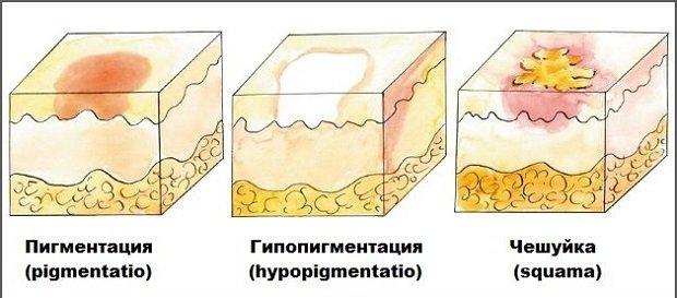 Вторичные элементы сыпи