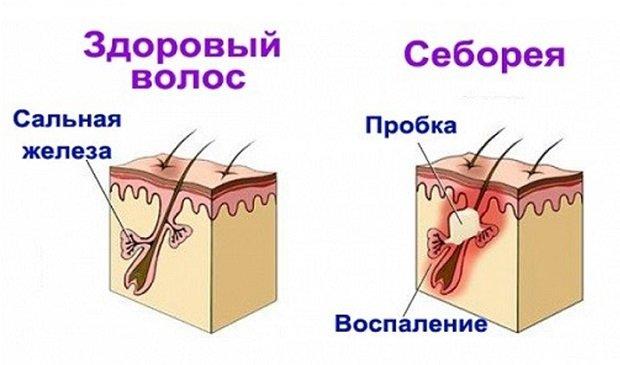 Себорейное воспаление