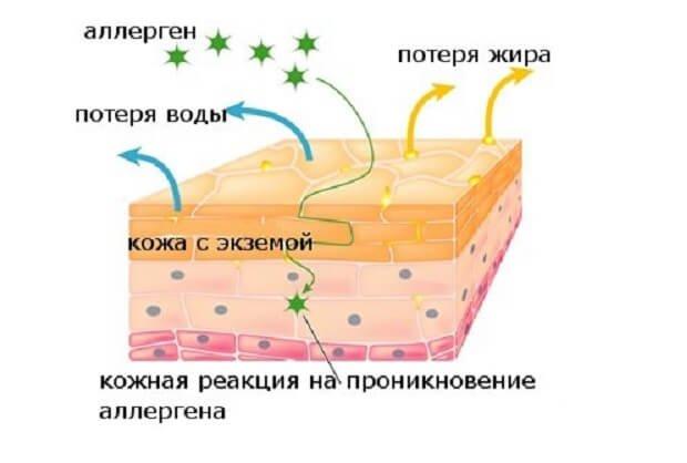 Возникновение аллергической экземы