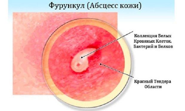 Абцесс кожи человека