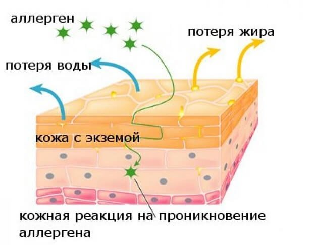 Аллерген проникает в кожу