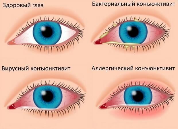 Аллергическая форма конъюнктивита