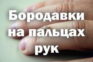 Как лечить бородавки на пальцах рук