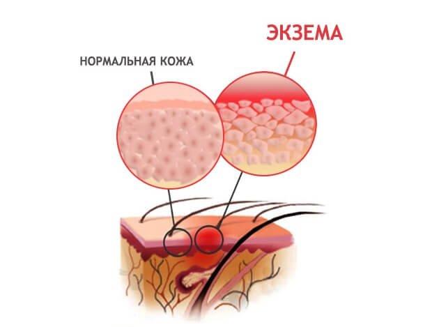 Экзема и нормальная кожа