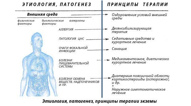 Этиология, патогенез экземы