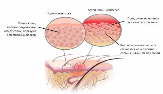 Формирование атопического дерматита