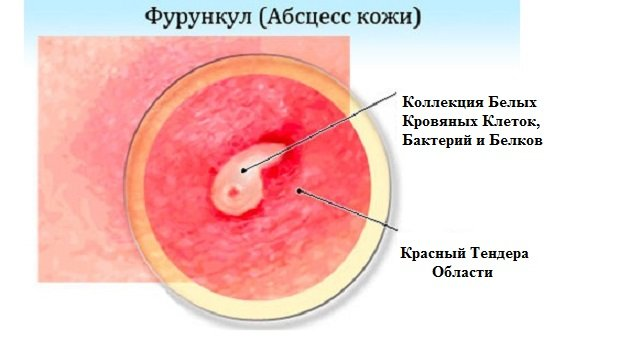 Фурункул-абсцесс кожи