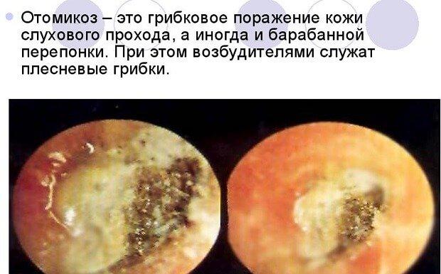 Характеристика грибкового поражения