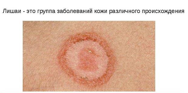 Пятно на коже