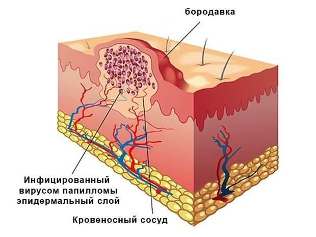 Эпидермальный слой