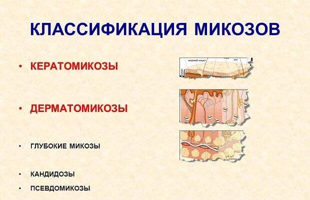 Лечение грибка на коже тела народными средствами