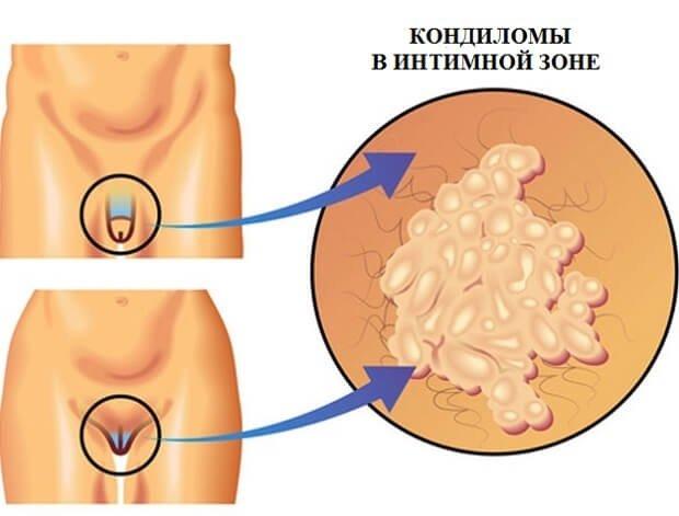 Кондиломы на гениталиях человека