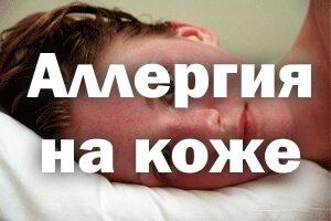 Аллергия на коже, красные пятна чешутся