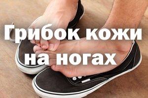 Грибок кожи на ногах