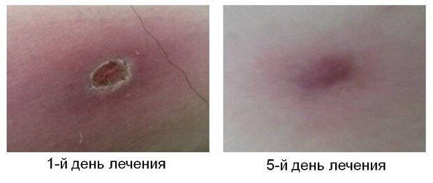 Лечение фурункула у человека