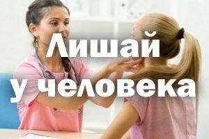 Эффективное лечение лишая у человека в домашних условиях