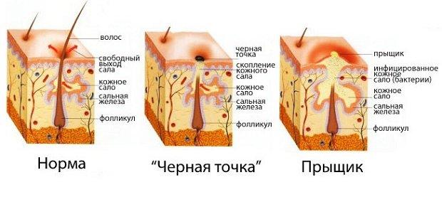 Срезы кожи