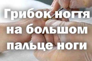 Лечение грибка ногтя на большом пальце ноги