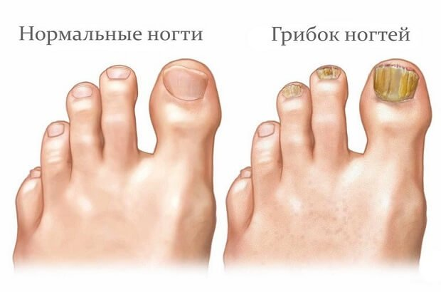Нормальный ноготь и грибок