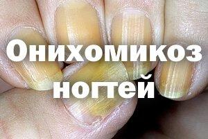 Желтые ногтевые пластины