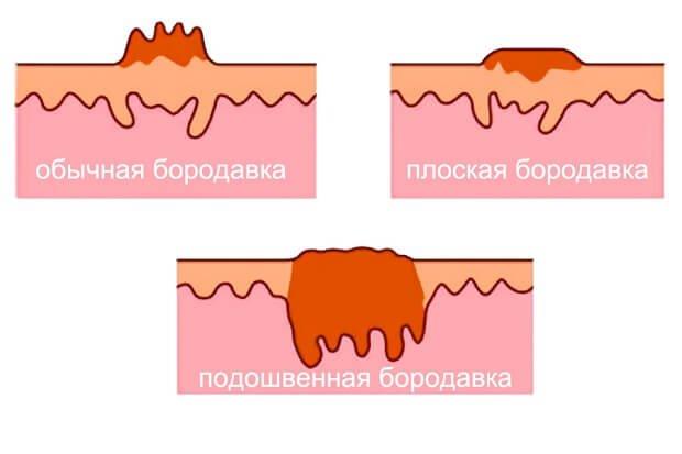 Основные виды бородавок