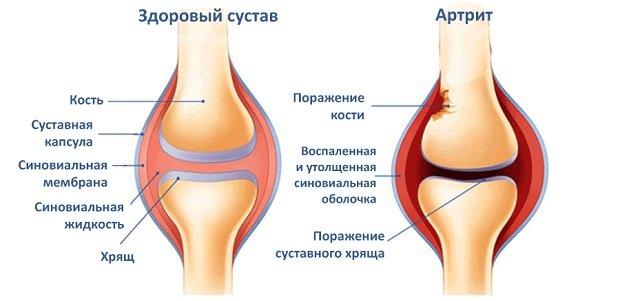 Проявление артрита у человека