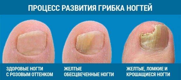 Поражение ногтя на ноге