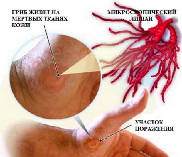 Поражение участка кожи