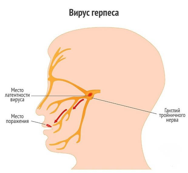 Признаки и лечение опоясывающего герпеса на теле