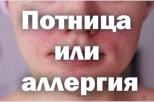 Потница или аллергия - как отличить