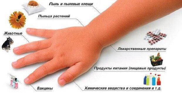 Причины крапивницы у человека