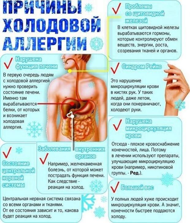 Холодовая аллергия как лечить при беременности