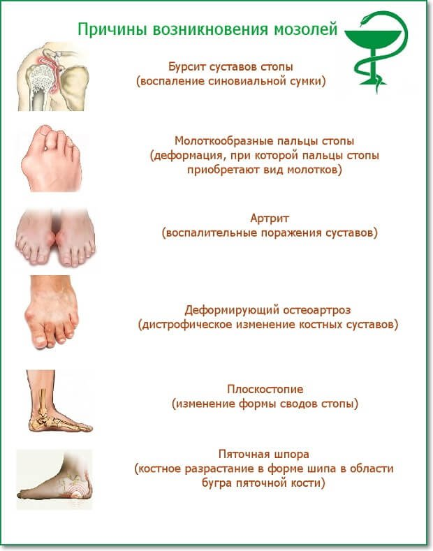Причины натертостей