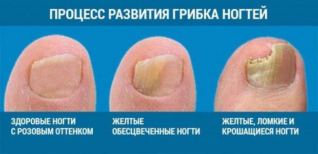 Грибок ногтя на ноге фото начальная стадия лечение