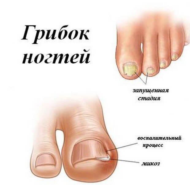 Прогрессирование микоза ногтей