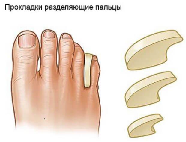 Прокладки разделяющие пальцы