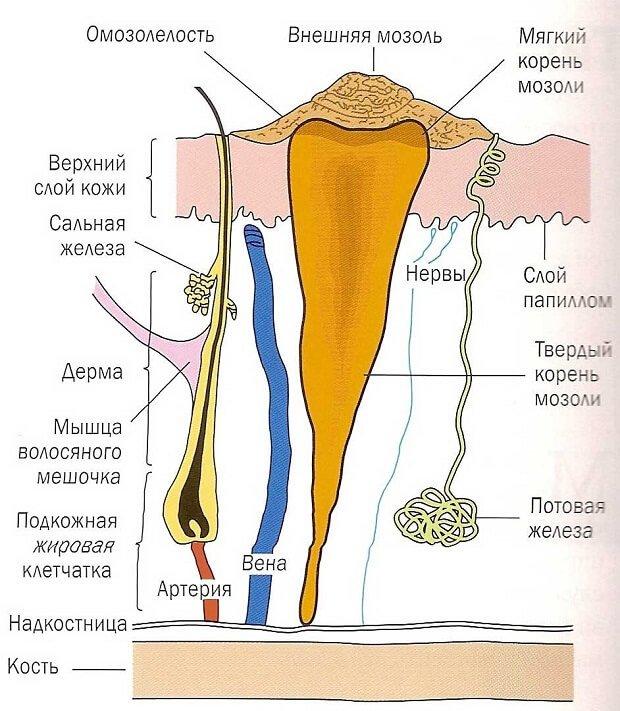 Прорастание мозолей в кожу