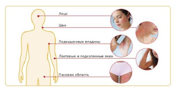 Распространение нейродермита на коже