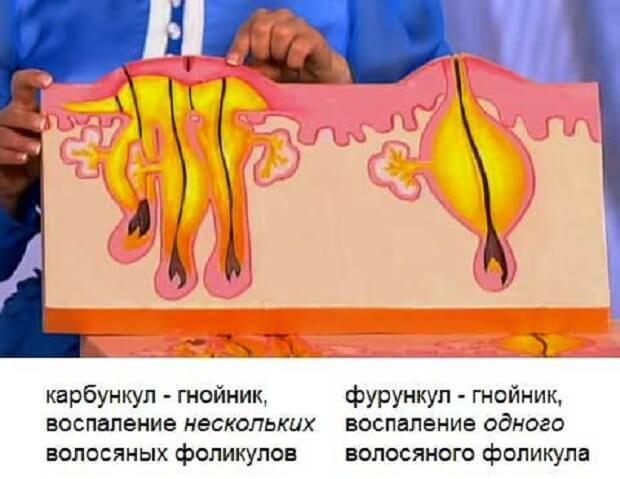 Различие видов образований