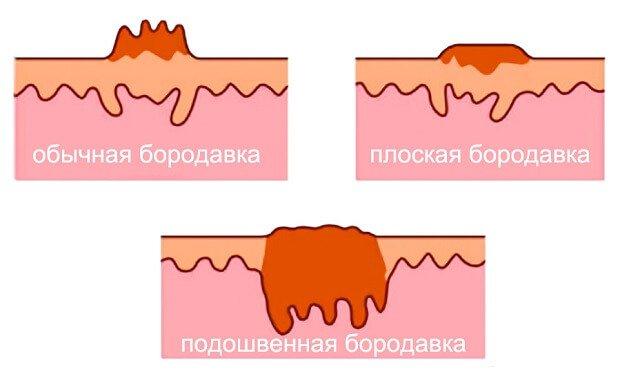 Различные виды бородавок