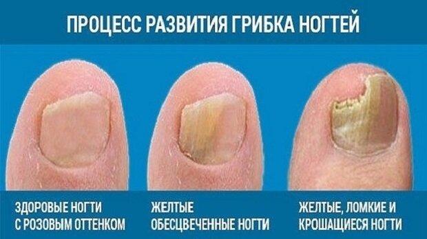 Развитие грибка ногтей