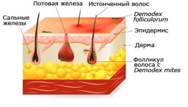 Схема демодекоза
