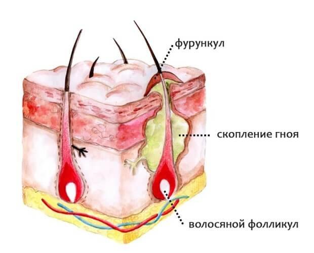 Схема фурункула на коже